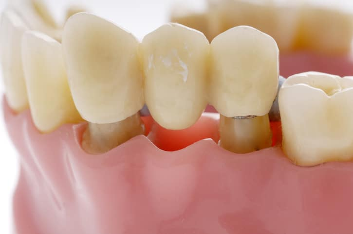 repairing dentures in Milwaukee